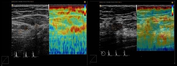 Vorteile Ultraschallsystem Elastoscan Verfahren