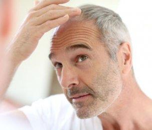 Mann prüft seinen Haarausfall