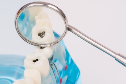 dental-tool-and-tooth-model-or-dental-modelmedical-concept.jpg