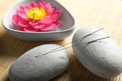 Bild Akupunkturnadeln mit Steinen