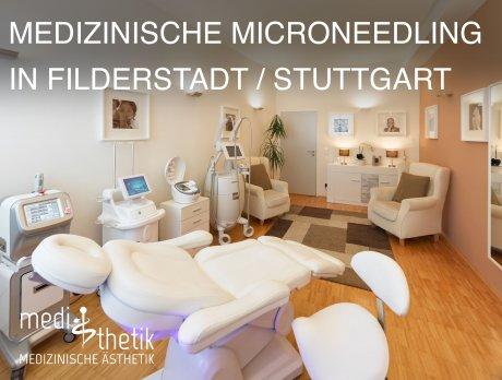 Sofort-Lifting durch das medizinisches Microneedli