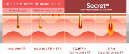 Microneedling Behandlungsmethode und Erfolg